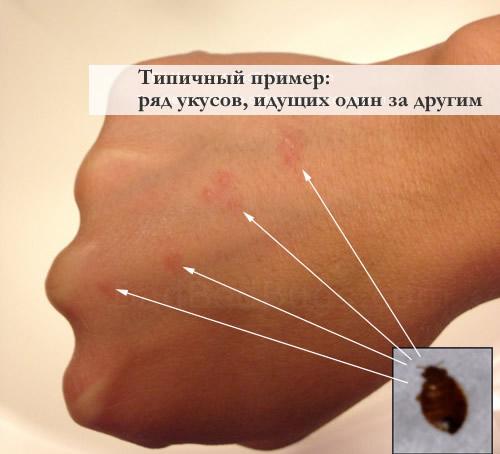 средства от домашних насекомых паразитов